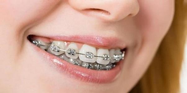 Niềng Răng – Giải Pháp Mang Lại Hàm Răng Đẹp Nhất