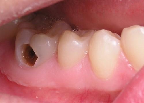 Nhổ Răng Sâu 3
