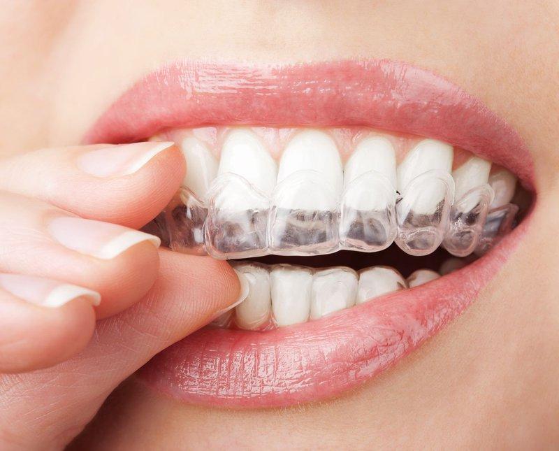 Niềng Răng Trong Suốt Invisalign – Đỉnh Cao Của Ngành Niềng Răng Chỉnh Nha Y Khoa
