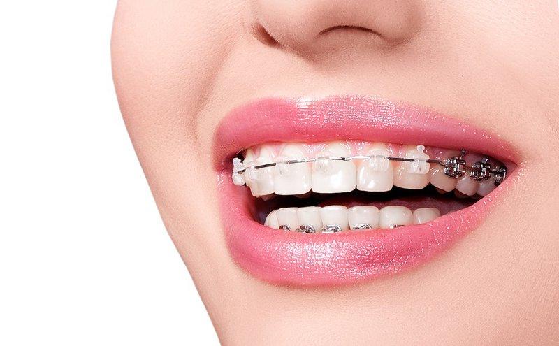 Cam Kết Mang Lại Tiếng Cười Tự Tin Khi Niềng Răng Thẩm Mỹ Tại Nha Khoa Ngọc Trai