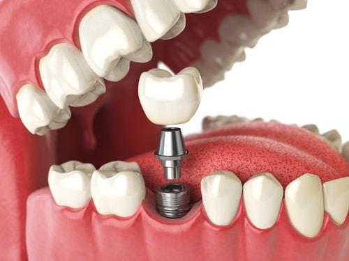 Phục Hình Implant – Giải Pháp Phục Hồi Răng Hoàn Hảo Và Hiệu Quả Nhất Hiện Nay