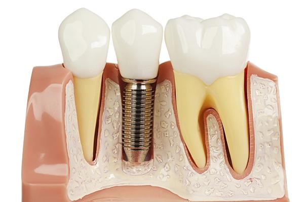 10 Lý Do Bạn Nên Trồng Răng Implant Ngay Lập Tức