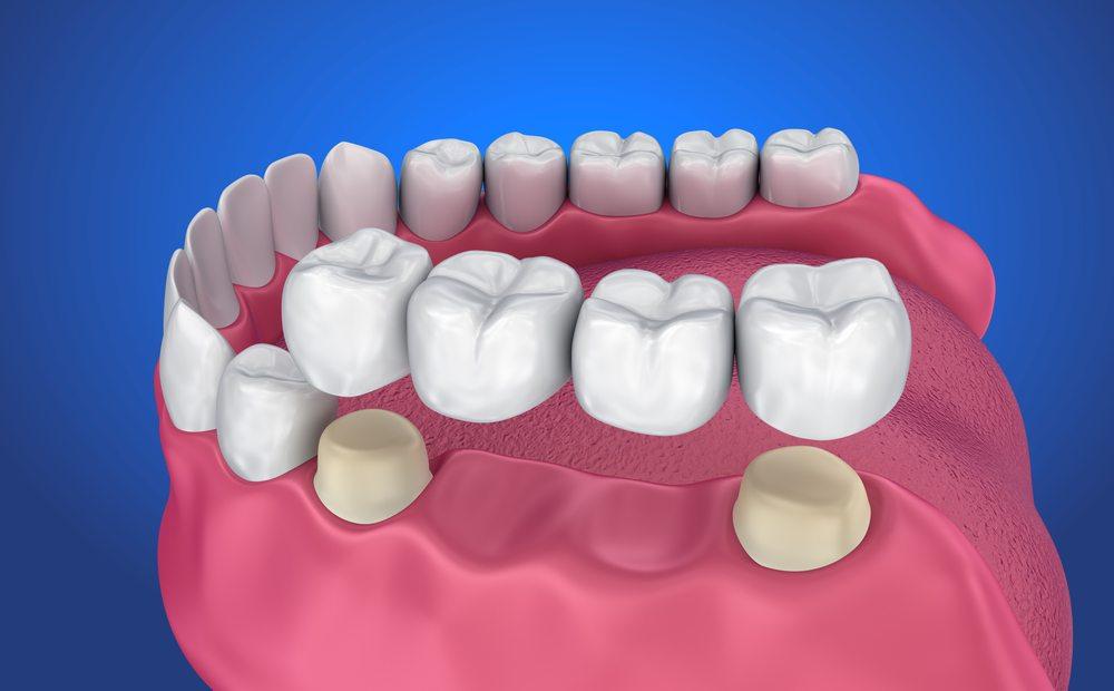 Bắc Cầu Răng Sứ Sự Lựa Chọn Hoàn Hảo Để Phục Hình Răng Mất Tại Nha Khoa Ngọc Trai
