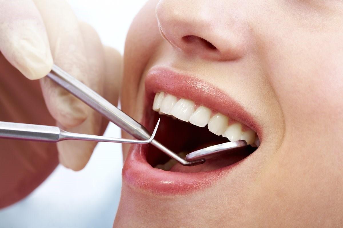 Tẩy Trắng Răng Là gì? Những Điều Cần Biết Về Tẩy Trắng Răng