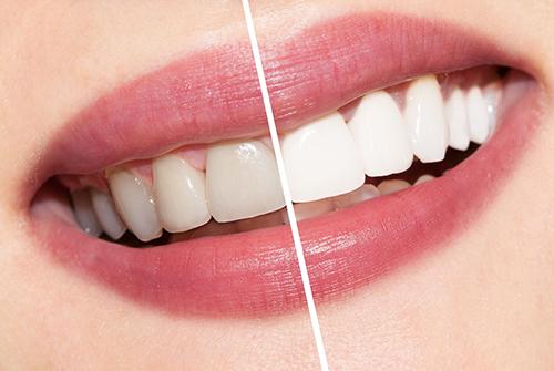 Chúng Ta Nên Tẩy Trắng Răng Tại Nhà Hay Đến Nha Khoa Uy Tín Để Tẩy Trắng Răng?