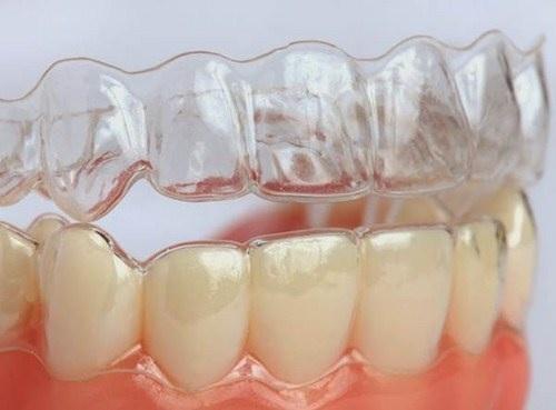 Niềng Răng Trong Suốt Invisalign Và Những Ưu Điểm Về Thẩm Mỹ