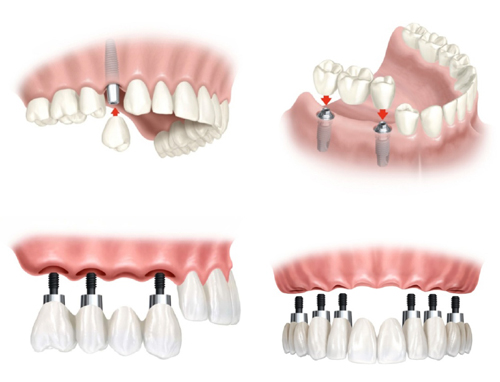 2 Trong Rang Implant 5s