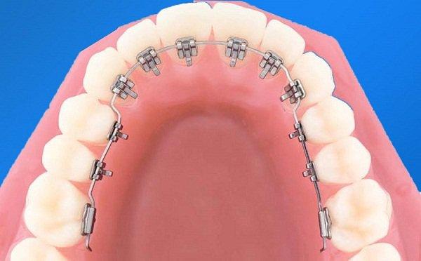 Các Lý Do Để Niềng Răng – Địa Chỉ Niềng Răng Uy Tín Tại TpHCM