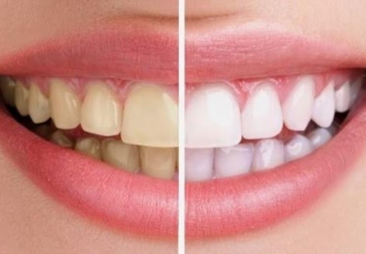 Việc Tẩy Răng Trắng Có Làm Hỏng Men Răng Không?