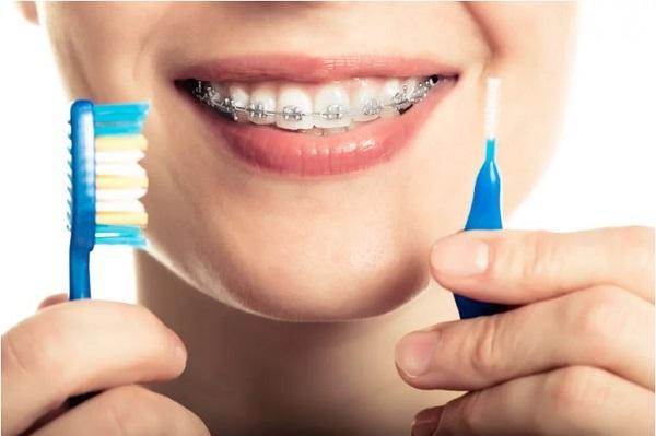 Chăm Sóc Và Vệ Sinh Răng Miệng Khi Niềng Răng Như Thế Nào?