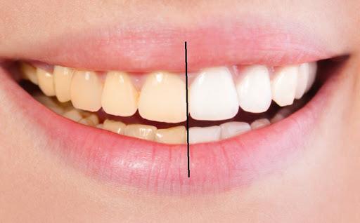 Cách Làm Trắng Răng Chỉ Trong 3 Phút | An Toàn – Hiệu Quả