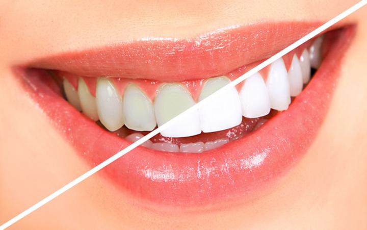 Những Kinh Nghiệm Khách Hàng Nên Biết Khi Tẩy Trắng Răng