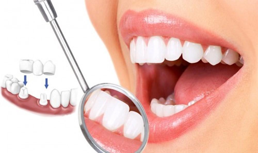 Nha Khoa Ngọc Trai | Trồng Răng Sứ Có Bị Đau Hay Không?