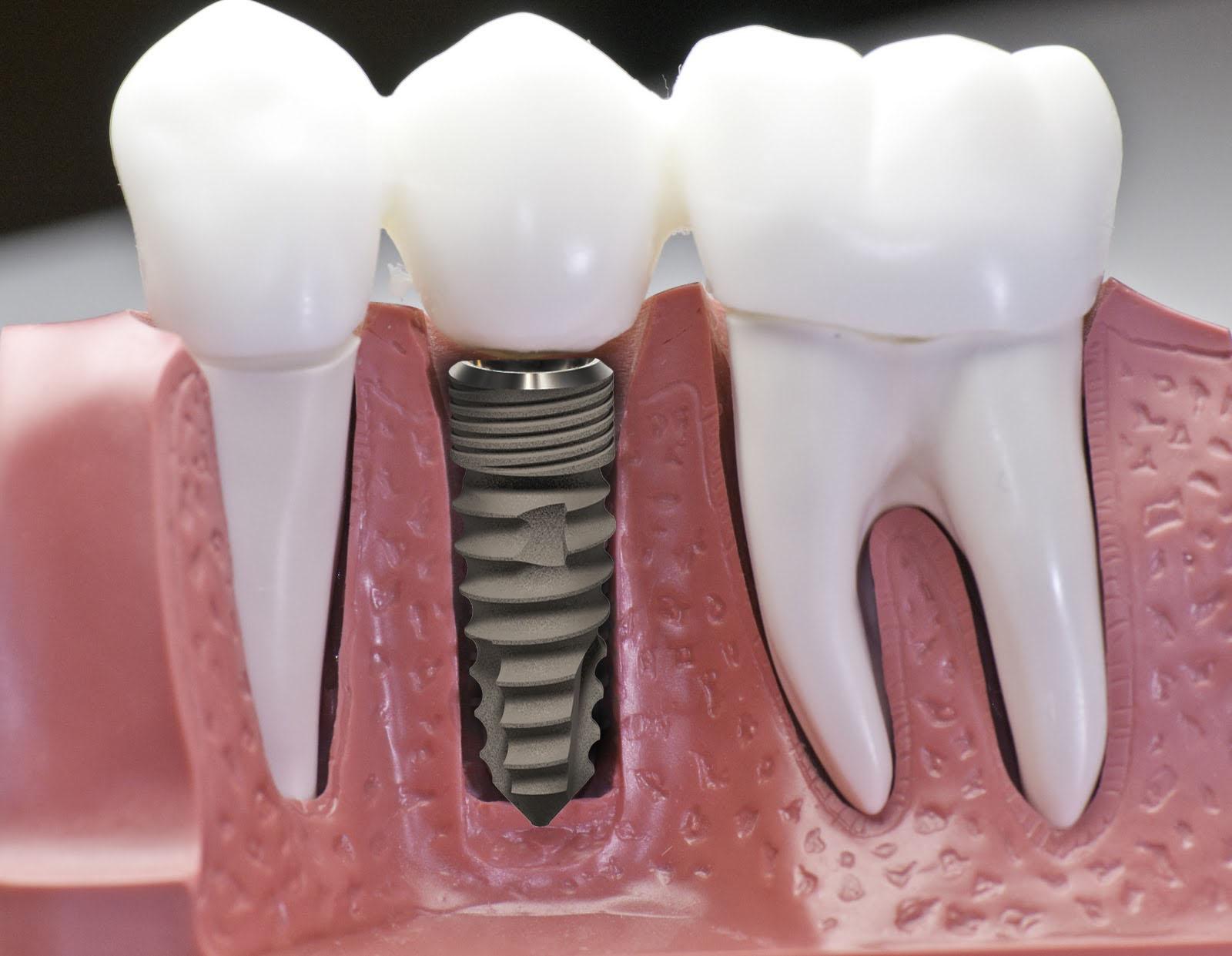 Trồng Răng Implant Có Đau Không? Nha Khoa Trồng Implant Uy Tín