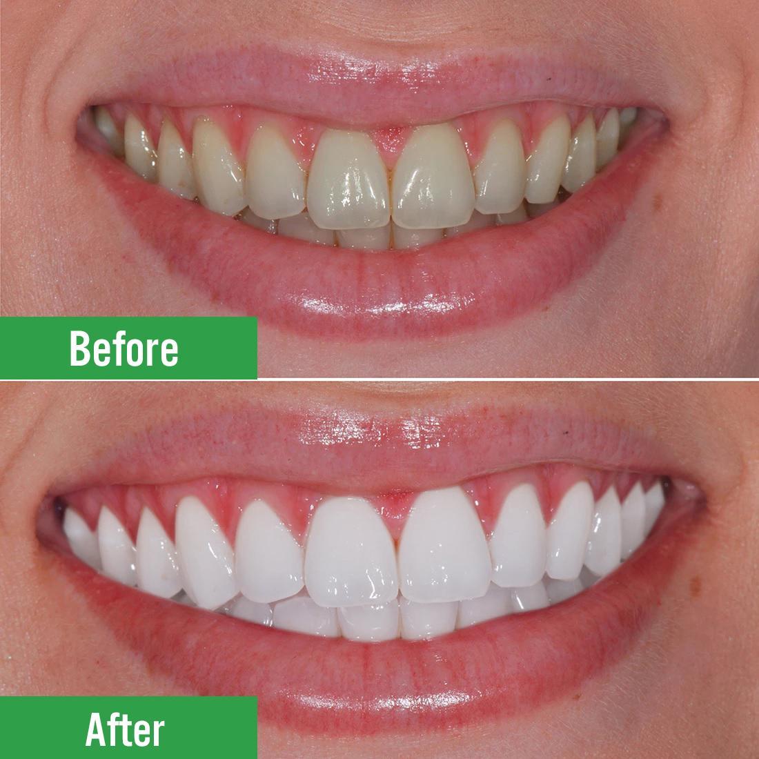 Quy Trình Tẩy Trắng Răng Nha Khoa Như Thế Nào?
