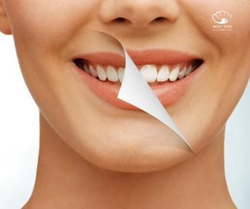Những Điều Mà Bạn Nên Biết Trước Khi Tẩy Trắng Răng