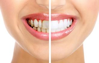 Dịch Vụ Tẩy Trắng Răng Và Những Câu Hỏi Liên Quan