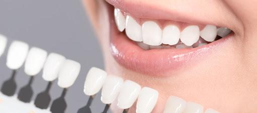 Hướng Dẫn Các Cách Chăm Sóc Răng Sứ Tại Nhà Hiệu Quả