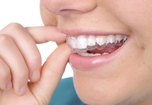 Tìm Hiểu Về Phương Pháp Niềng Răng Trong Suốt Invisalign