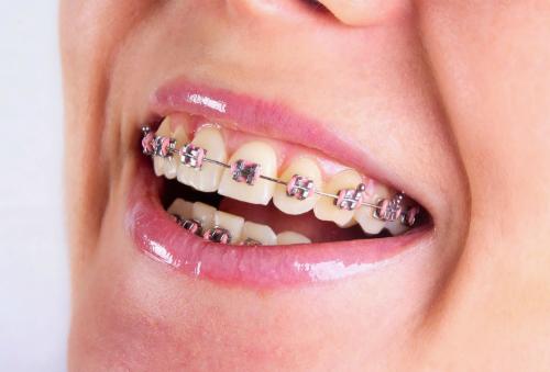 Chảy Máu Khi Niềng Răng | Nguyên Nhân Gây Nên Tình Trạng Này