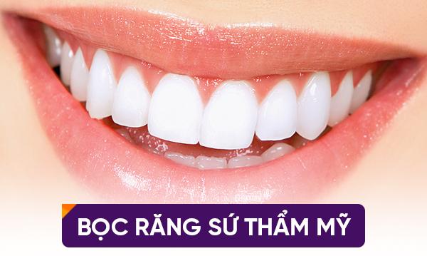 Trồng Răng Sứ Trên Răng Implant Thì Nên Chọn Loại Nào Là Tốt Nhất?