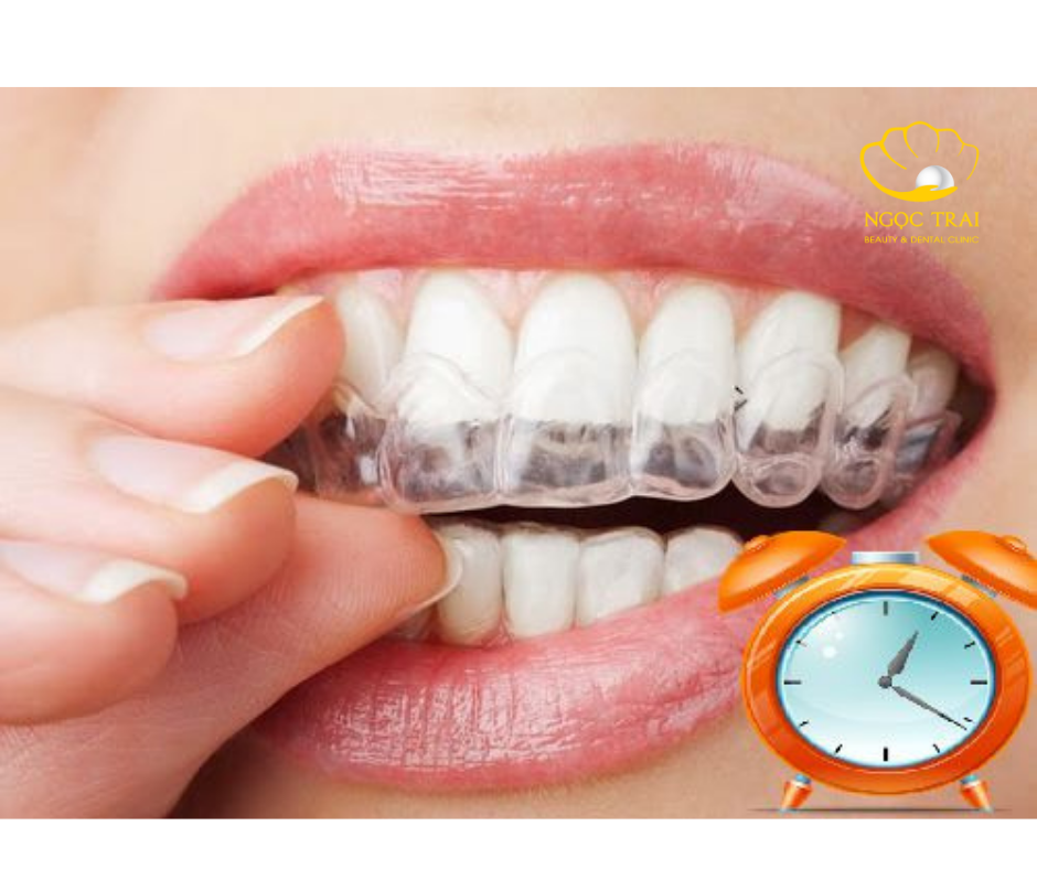 Tìm Hiểu Phương Pháp Tẩy Trắng Răng Tại Nhà Với Máng Tẩy Trắng
