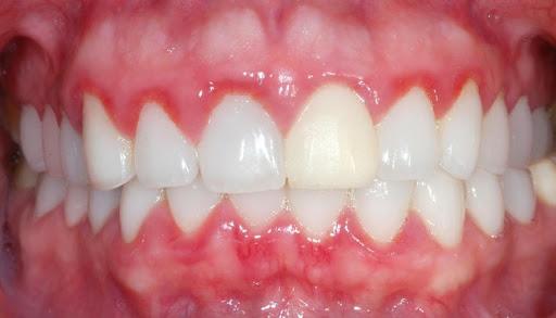 Những Điều Bạn Cần Biết Về Bọc Răng Sứ Thẩm Mỹ