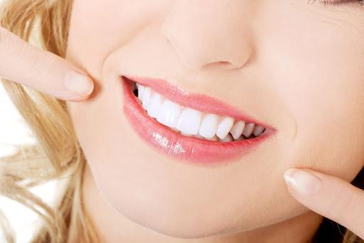 Tẩy Trắng Răng Có Ảnh Hưởng Đến Sức Khỏe Hay Không?