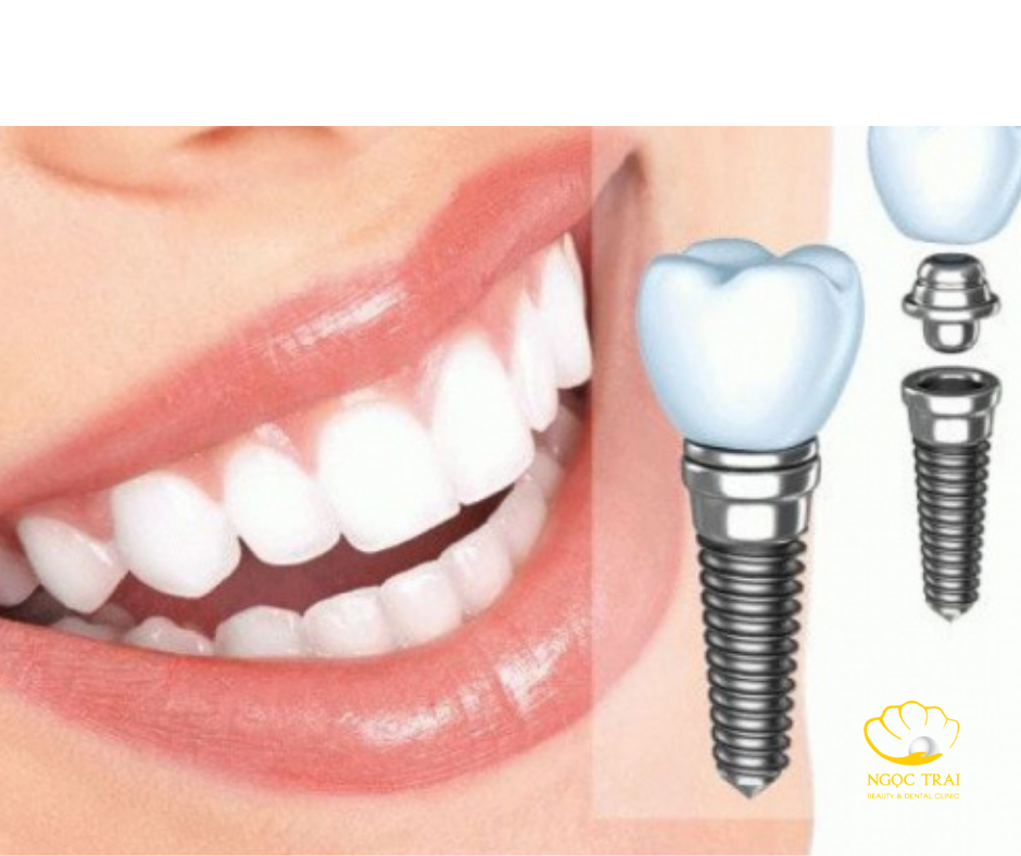 Vệ Sinh Răng Miệng Sau Khi Trồng Răng Implant Như Thế Nào?