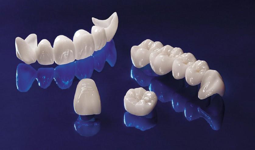 Nha Khoa Ngọc Trai | Làm Răng Sứ Lần 2 Có Đau Không?