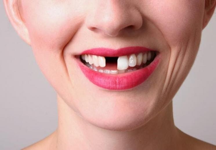 Nha Khoa Ngọc Trai | Đâu Là Giải Pháp Cho Người Bị Mất Răng Cửa?