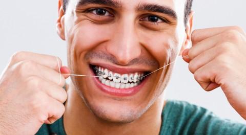 Những Điều Cần Biết Trước Và Sau Khi Niềng Răng