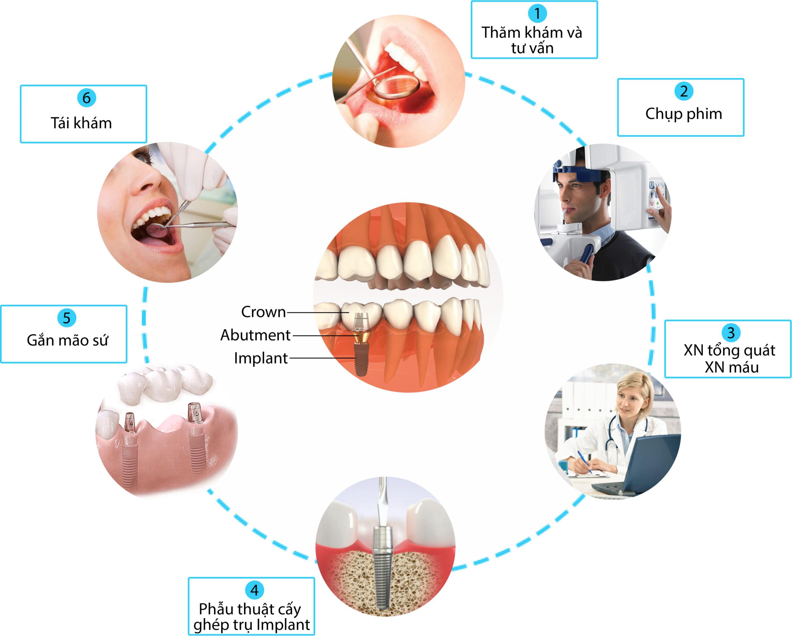 Tham Khảo Quy Trình Trồng Răng Implant