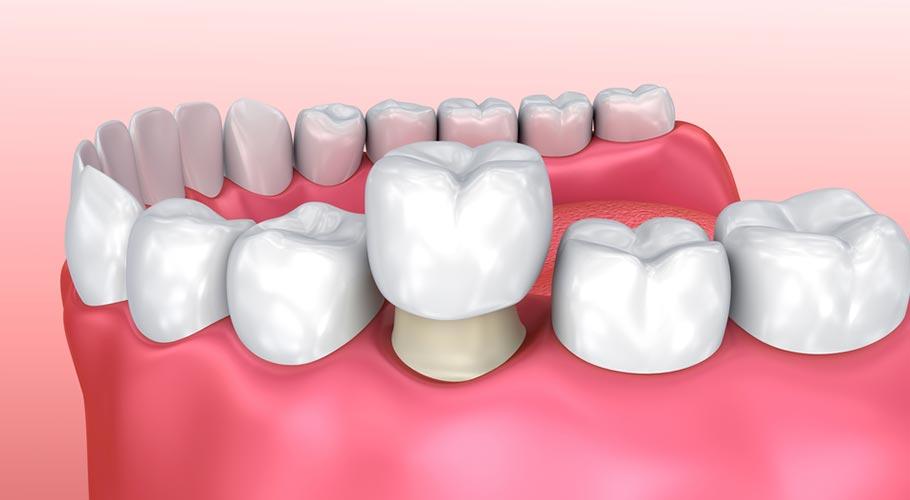 Bọc Răng Sứ Có Đau Không? Nên Đến Nha Khoa Nào Bọc Răng Để Đảm Bảo An Toàn