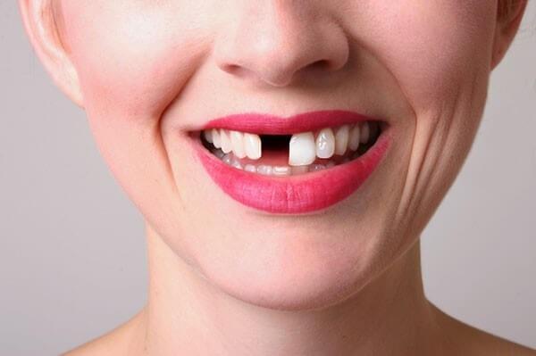 Các Phương Pháp Trồng Răng Phổ Biến Hiện Nay