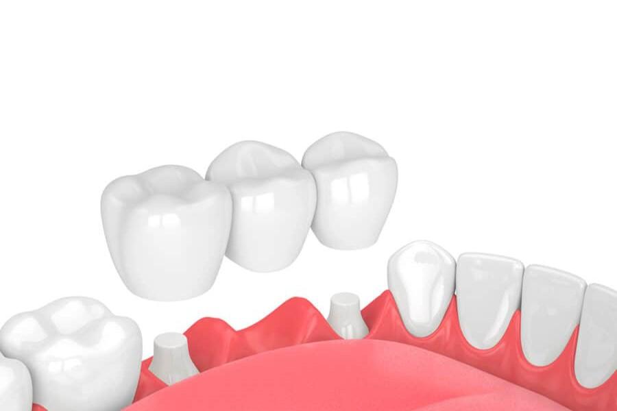 Nha Khoa Ngọc Trai | Làm Cầu Răng Sứ Có Bền Hay Không?