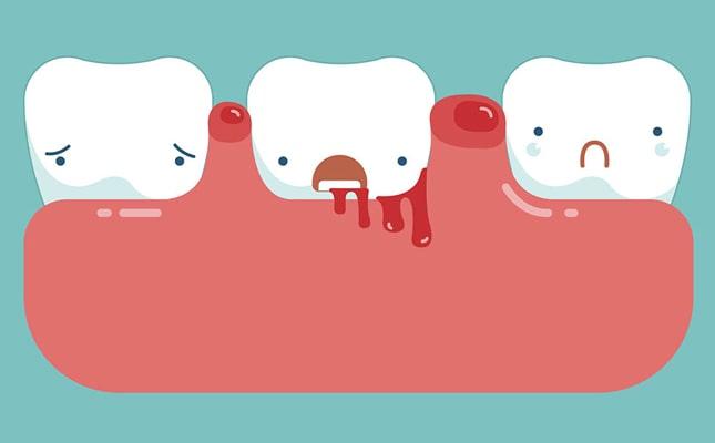 Đâu Là Nguyên Nhân Gây Nên Việc Chảy Máu Chân Răng?