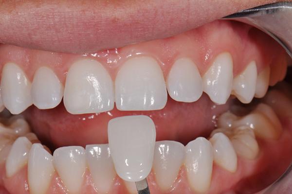 Điều Trị Tủy Răng Bọc Sứ Và Những Lý Do Cần Nên Điều Trị Tủy Răng Ngay