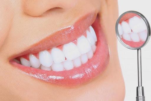 Làm Răng Sứ Thẩm Mỹ Ở Đâu Tốt Nhất Có Thể Bảo Vệ Răng Chắc Khỏe Mỗi Ngày