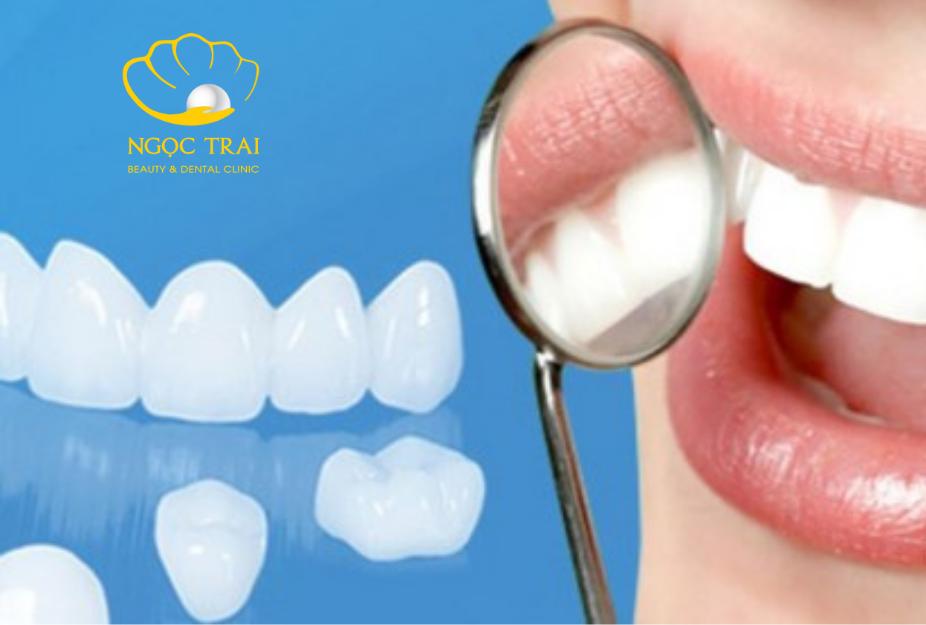 Nha Khoa Ngọc Trai | Mài Răng Để Làm Răng Sứ Có Nguy Hiểm Hay Không?