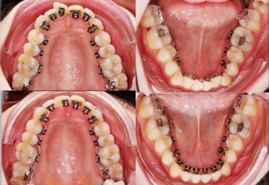 Những Điều Bạn Cần Lưu Ý Và Phải Biết Khi Niềng Răng Mặt Trong