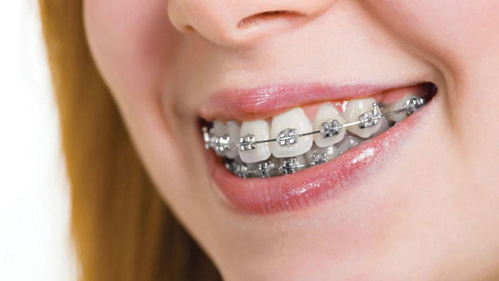 Niềng Răng - Giải Pháp Mang Lại Hàm Răng Đẹp Nhất