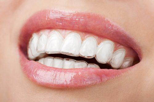 Niềng Răng Trong Suốt Invisalign - Đỉnh Cao Của Ngành Niềng Răng Chỉnh Nha Y Khoa
