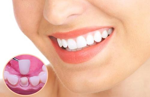 Những kinh nghiệm dành cho người đang muốn bọc răng sứ