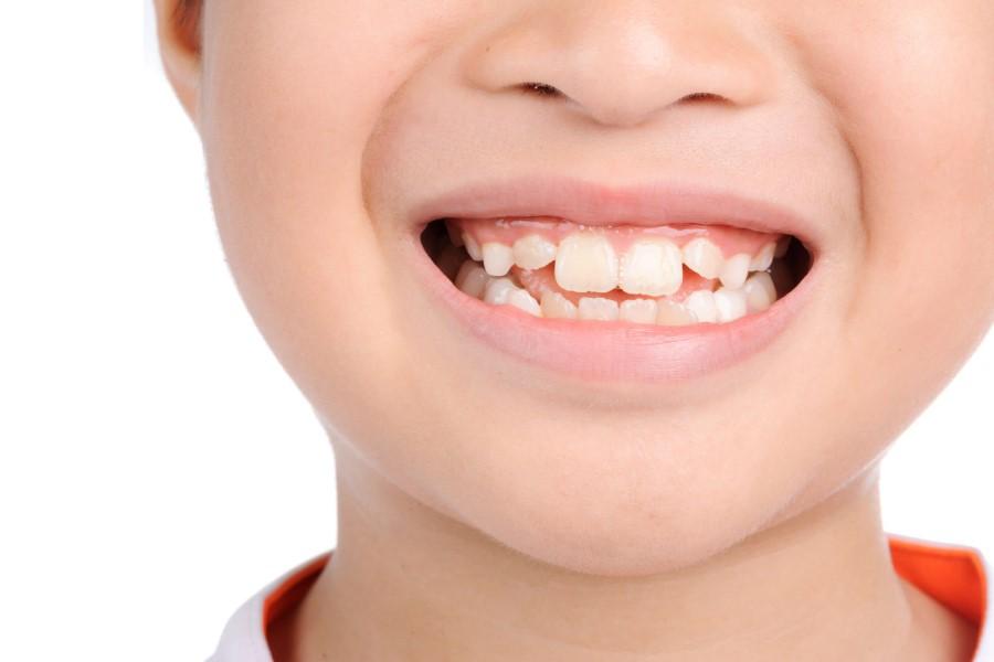 Nha Khoa Ngọc Trai | Muốn Bọc Sứ Răng Mọc Lộn Xộn Có Được Không?