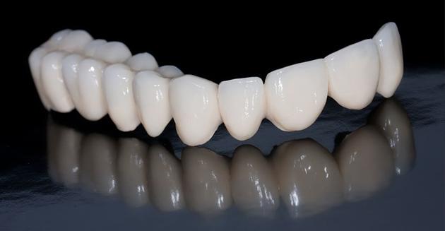 Răng sứ Emax Press là gì?