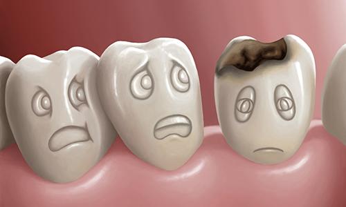 Nha khoa Ngọc Trai | Bị Sâu Răng Ảnh Hưởng Đến Sức Khỏe Như Thế Nào?
