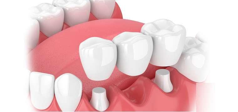 Trồng Răng Sứ Ở Nha Khoa Ngọc Trai Là Lựa Chọn Số 1 Của Các Bệnh Nhân