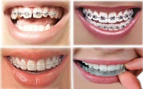 Niềng Răng Giá Rẻ Tại TpHCM & Những Điều Cần Biết Về Niềng Răng
