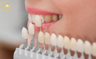 Làm Răng Sứ Thẩm Mỹ Có Cần Phải Mài Răng Không?